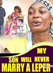 My Son Will Never Marry A Leper