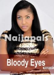 Bloody Eyes